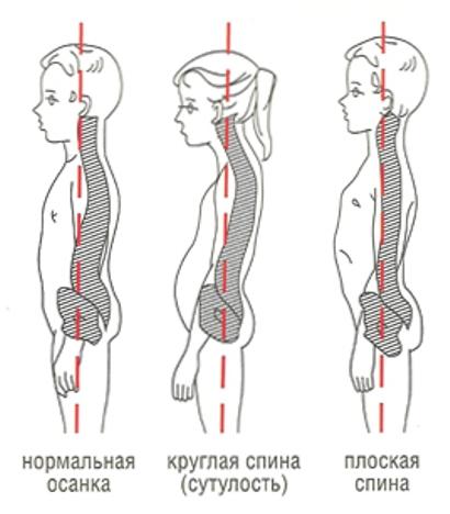 Сколиоз поясничного отдела рентген