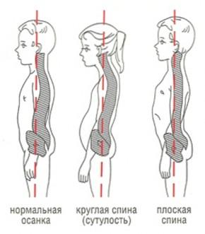 Пособие по лечению сколиоза
